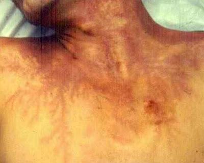 Akibat sambaran petir di tubuh seseorang