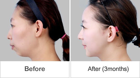 짱이뻐! - Korean Two Jaw Surgery & Cheekbone Reduction for Younger Looks