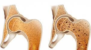Obesitas mampu memicu risiko osteoporosis