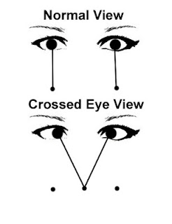Crossed Eye