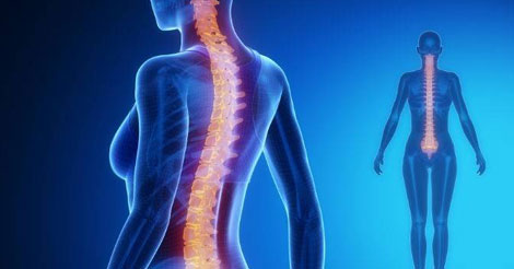 Hérnia de disco pode ser tratada sem cirurgia