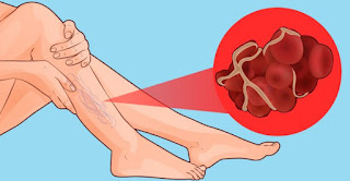 Signs That You Have A Blood Clot
