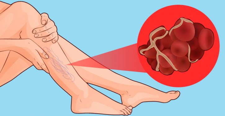 8 Signs That You Have A Blood Clot That Can Cause An Infarction Or Stroke