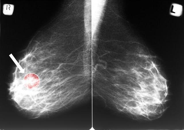 Cara Membedakan Benjolan Tumor Dan Penyakit Kanker Pada Payudara, ciri-ciri membedakan benjolan tumor serta penyakit kanker pada payudara