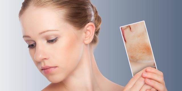 Cara Mengembalikan Wajah yang Rusak Akibat Cream dan Kosmetik