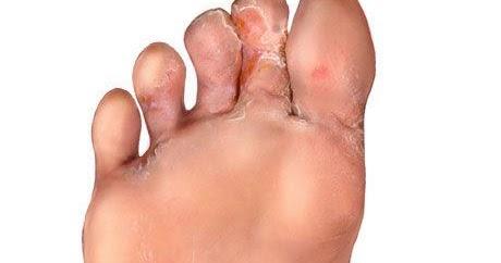 acido urico en los pies