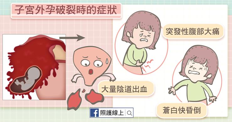 迷途受精卵,危及性命的子宮外孕(懶人包) - 照護線上