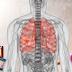 Asbestosis Guide