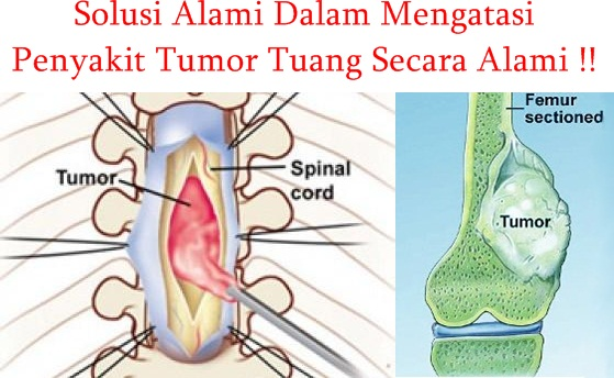 Obat Tradisional Tumor Tulang Ekstrak Teripang