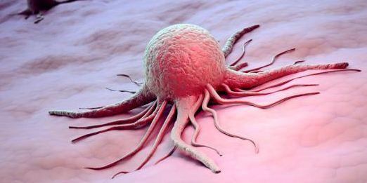Apakah Tumor Jinak Bisa Berubah Menjadi Tumor Ganas