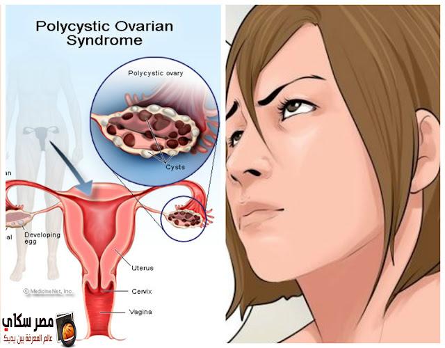 تكيس المبايض والأعراض والعلاج polycystic ovary