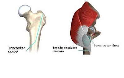 Dor no Quadril - Bursite trocantérica