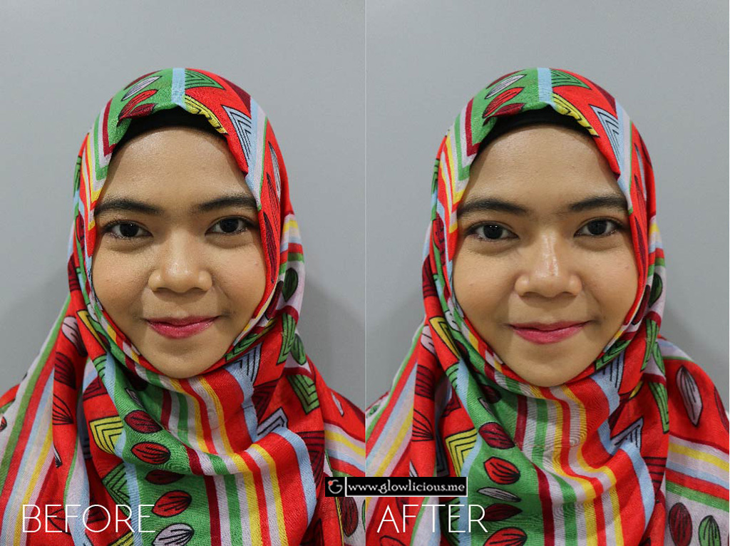 Filler Hidung dan Dagu - Before After - The Clinic Beautylosophy-Indonesia - Klinik Kecantikan Jakarta
