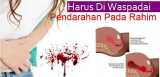 obat pendarahan rahim