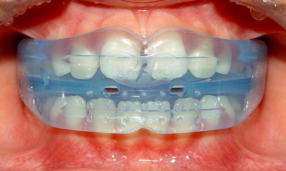 Ortodontia Miofuncional