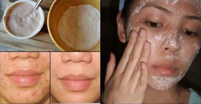 Masques pour éliminer les cicatrices d'acné ... Vous les aimerez!