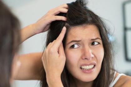 Cara Mengatasi Ketombe Membandel Pada Kulit Kepala
