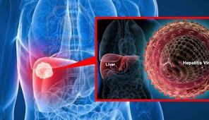 Gambar Obat alami herbal untuk penderita kanker hati