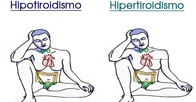 Hipotiroidismo e Hipertiroidismo: Aprende sus diferencias, signos, síntomas desencadenantes y tratamientos.