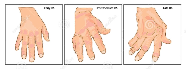 Sakit REMATIK - Reumatoid Artritis