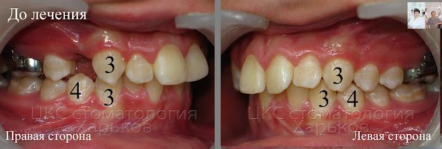 на левой и правой стороне пациента разный характер смыкания зубов
