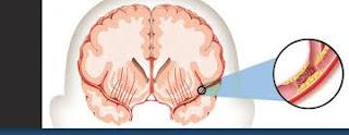 Jual Tanaman Obat Stroke Yang Berat, apa obat herbal stroke sebelah kanan yang manjur?, Cara Alami Mujarab Mengobati Penyakit Stroke Ringan