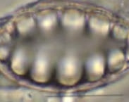 Microskopische opname van Surirella venusta. Vergroting ca 1500x. Deel van Figuur 5. Pag. 24 in Ecoscans riooloverstorten Goese Polder en Groote Waterleiding