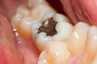 bị sâu răng có nên trám không -2