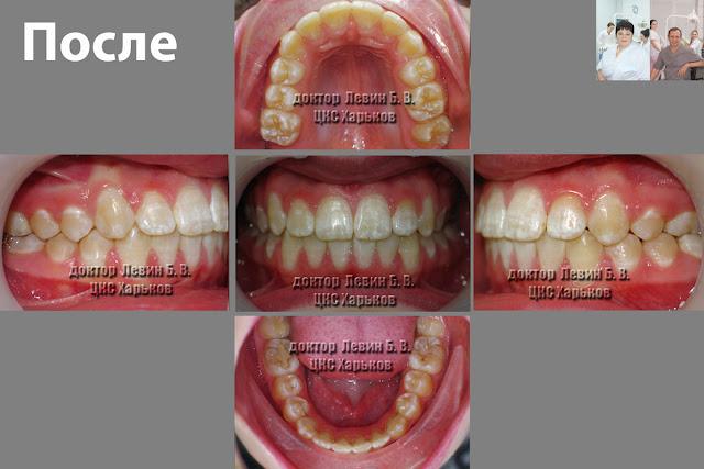 пять фото прикуса  в разных проекциях после лечения