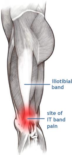 tratamentul artrozei piciorului cu argilă osteochondroza simptomelor toracice ale simptomelor de tratament