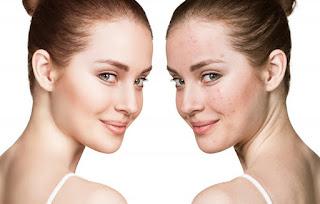 Tca skin peel cost effective way to treat acne