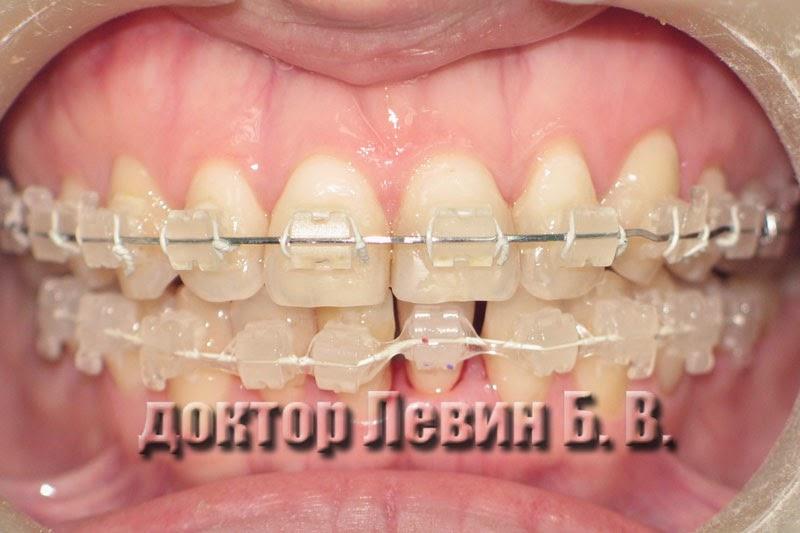 Фотография верхнего и нижнего зубного ряда через семь месяцев после начала лечения керамическими брекетами.