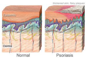 3 Types of Psoriasis and the Symptoms