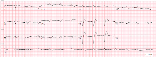 Dr  Smith's ECG Blog: Sinus rhythm with a new wide complex QRS