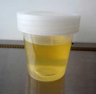 şeker hastaları idrar keton