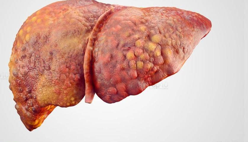 Life Expectancy With Cirrhosis of The Liver