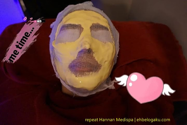 buang jeragat,cara buang pigmenatasi kulit,beauty blogger