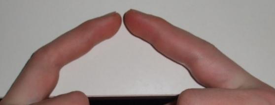 Schmerzen Im Mittelfinger