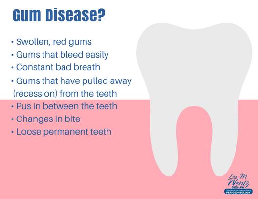 Our Dental Blog   Lubbock Periodontics
