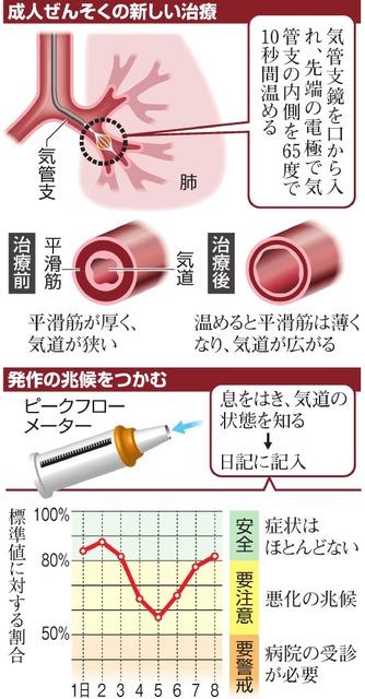 気管支サーモプラスティ 気管支ぜんそく 治療法