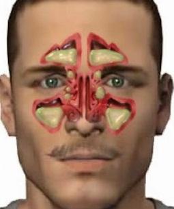 que es la sinusitis cronica y como se cura