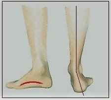 1026202a4 ... πλατυποδία είναι ανώδυνη και δεν χρειάζεται ειδική θεραπεία, αφού οι  τυχόν μικροπαρεκκλίσεις από το φυσιολογικό αποκαθίστανται από μόνες τους.