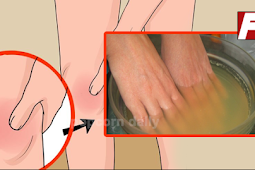 Merendam Tangan Anda Dalam Cairan Ini Dapat Menyembuhkan Artritis Hanya Dalam 30 Menit!