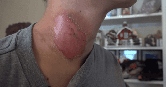 Teen Wakes Up At Sleepover In Agonizing Pain, Feels His Neck & Immediately Starts To Scream