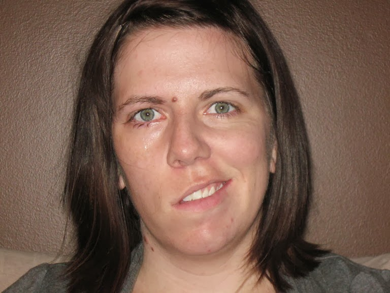 paralysis Amy goodmans facial