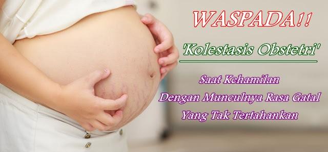 Pengobatan Kolestasis Obstetri Pada Kehamilan Secara Herbal