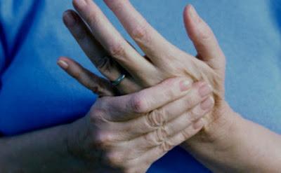 Kenali Lebih Dekat Penyakit Kesemutan