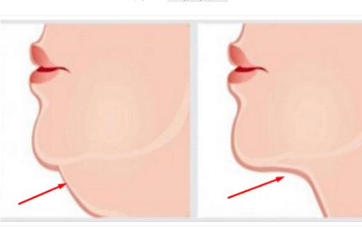 6 Teknik Ini Untuk Menghilangkan Dagu Anda Yang Berlapis, Silakan Mencoba...