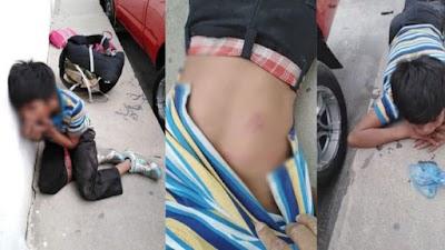 El niño fue brutalmente golpeado tras robar comida porque tenía hambre