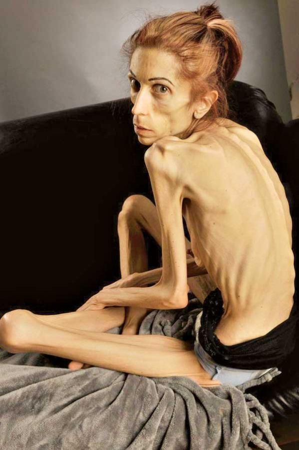 Trucos para adelgazar anorexia recovery